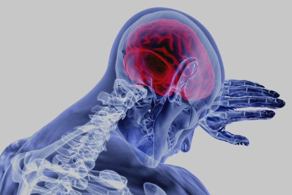 ictus stroke Percorso diagnostico terapeutico - Dott Giancarlo Stazi