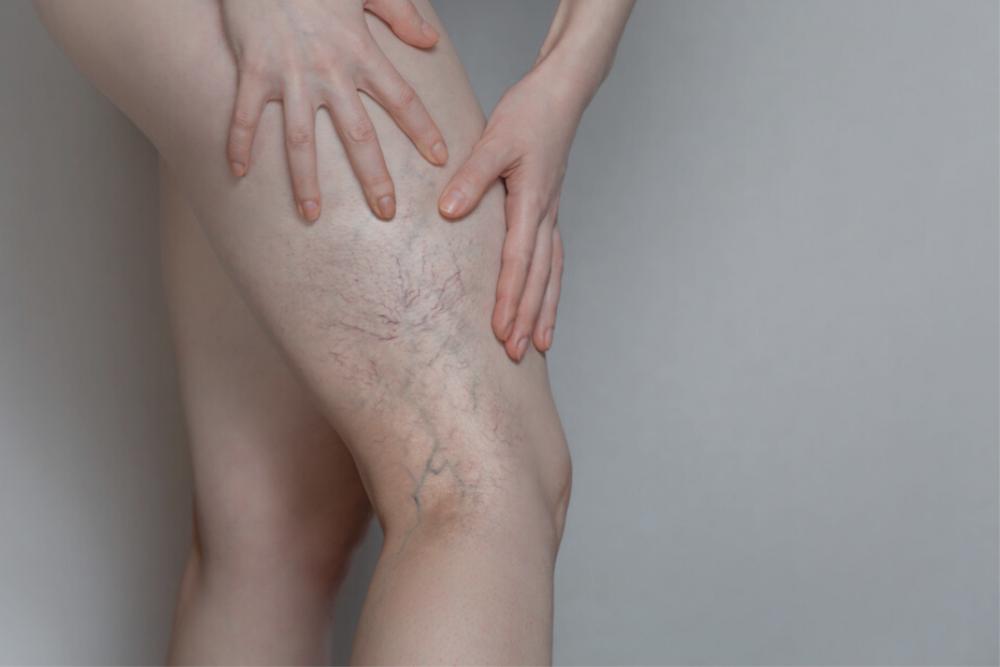 donna con vene varicose trombosi venosa